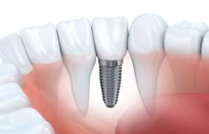Single Tooth Implant Model Jefferson GA